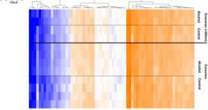 alcoholic hepatitis | Exosome RNA