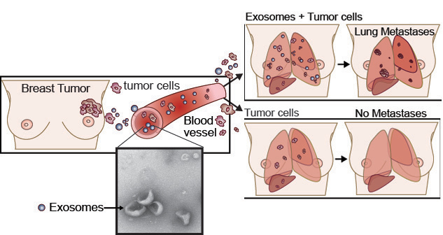 breast cancer site scouting for metastasis new study uncovers the of 30895